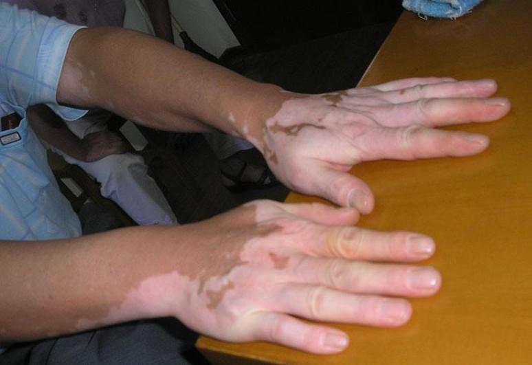 白癜风治疗经常会出现哪些问题